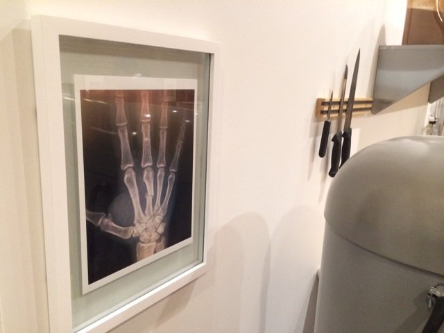 A reminder of Brian's healed hand.JPG