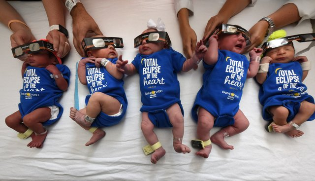 Barnes Jewish Hospital - St. Louis -Total Eclipse of the Heart Babies - 2017.08.21 - 1.jpg